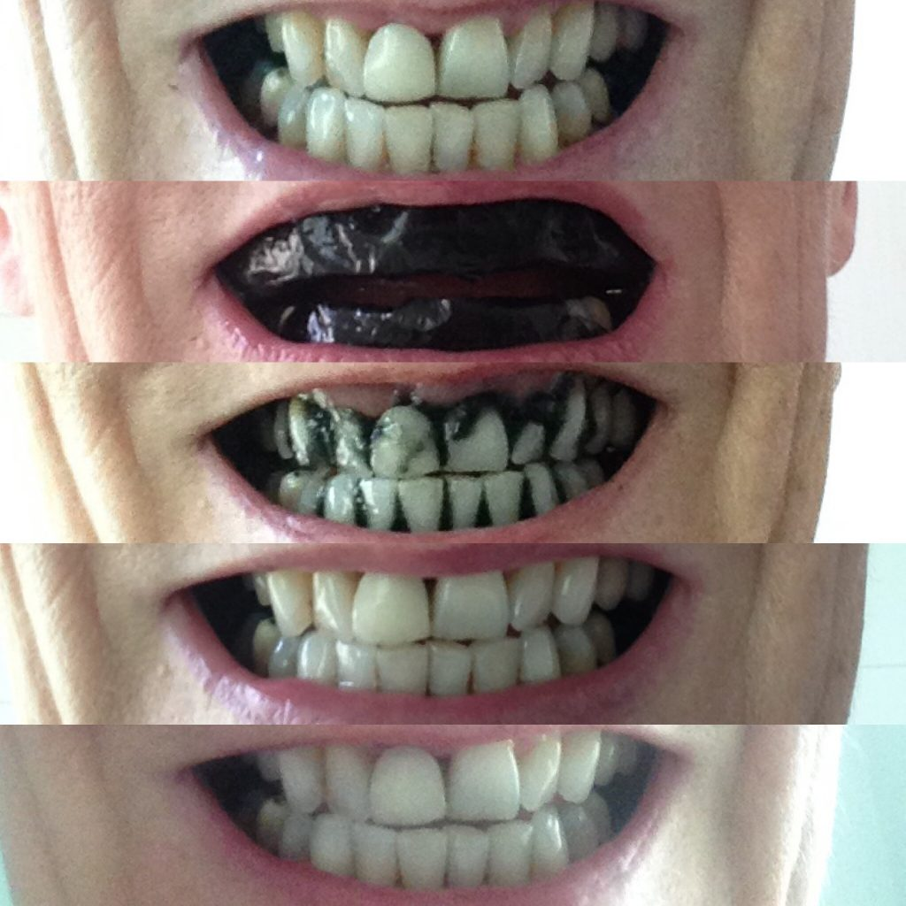 At Home Teeth Whitening. Pro Teeth Whitening Co. Charcoal Strips Trial